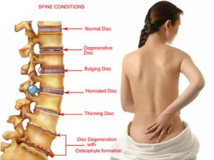 What Are The Common Causes Of Back Pain