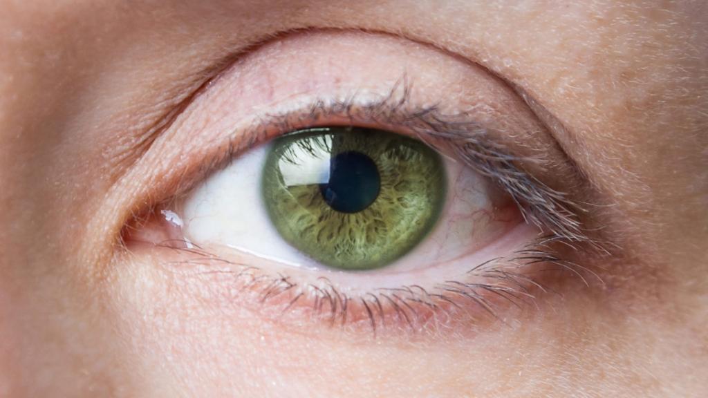 Afectiuni Comune Ale Ochilor Si Solutia Pentru Aceste Probleme